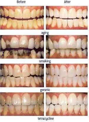 Esthetic Dentistry - Dr  Swarup's
